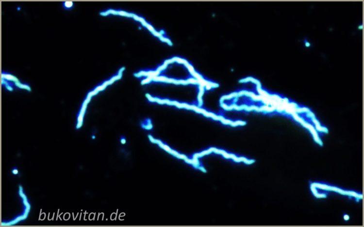 Borreliose Mikroskopie