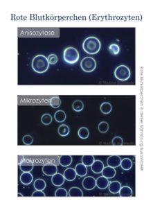 Dunkelfeldmikroskop zeigt Erythrozyten