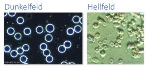 Vergleich der roten Blutkörperchen mit unterschiedlichen Kondensoren